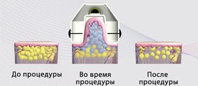 Криолиполиз COCCON – криомоделирование